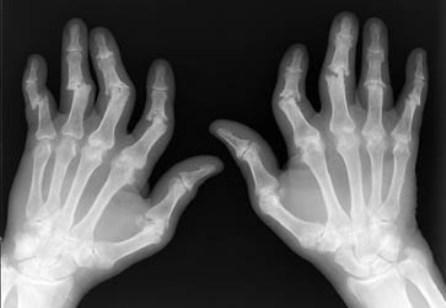 doc dr soner senel el parmaklarinda bileklerde agri ve sislik sikayetleriniz oluyorsa romatoid artrit iltihabli el romatizmasi olabilir